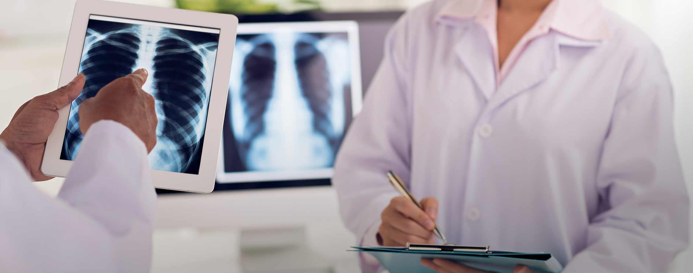 Radiografie a domicilio in Piemonte e Lombardia