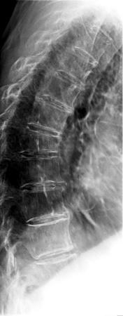 rx dorsale