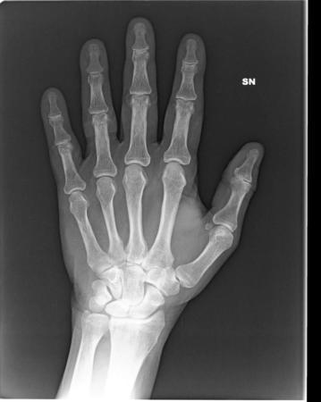 rx mano radiografie