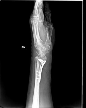 rx polso radiografie