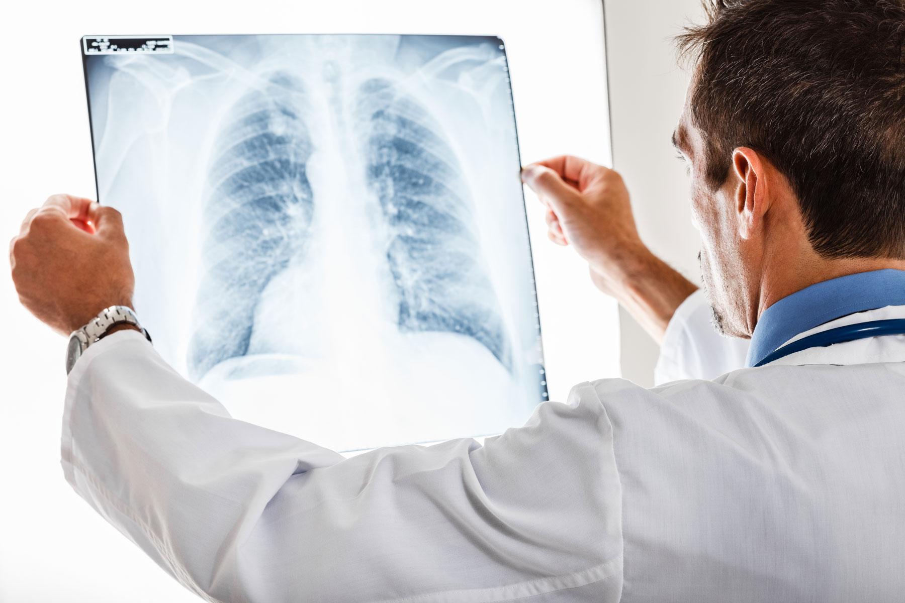 Radiografie a domicilio